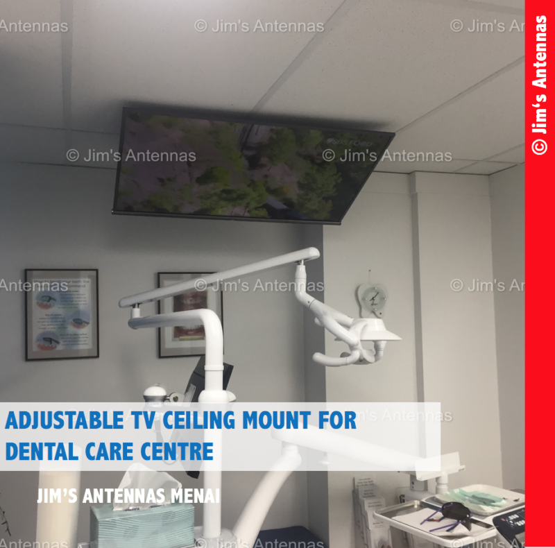 ADJUSTABLE TV CEILING  MOUNT FOR DENTAL CARE CENTRE